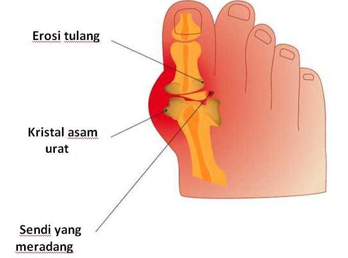 gejala asam urat terdapat nyeri pada sendi